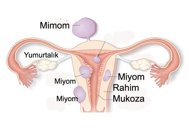 Miyom Nedir ?